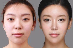 До и после пластики азиатских век