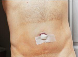 Реабилитация после герниопластики
