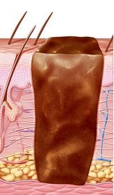 Схема строения шрама