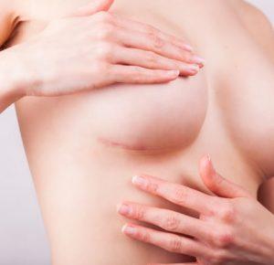 Шов после маммопластики
