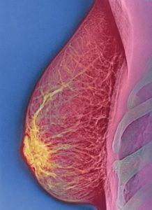 Строение молочной железы у женщин