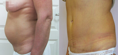 Абдоминопластика до и после фото