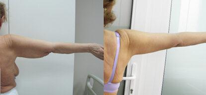 Брахиопластика фото до и после. Подтяжка рук