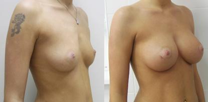 увелич груди 2