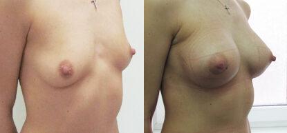 Увеличение груди фото до и после. Маммопластика