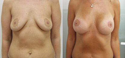 Подтяжка груди фото до и после. Мастопексия
