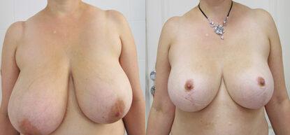 Уменьшение груди фото до и после. Редукционная пластика груди